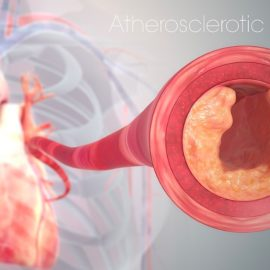 Heart Disease Causes: Know the #1 Culprit