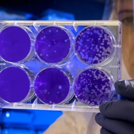 HeLa Cells Contamination of Cell Cultures Shocks Scientists