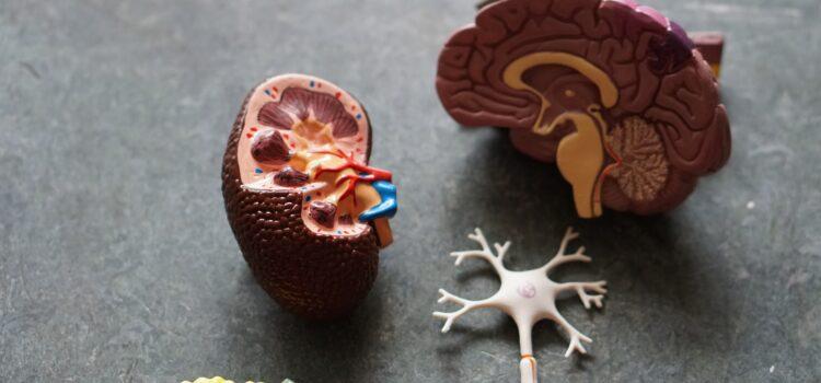 How to Prevent Alzheimer's Disease Through Diet