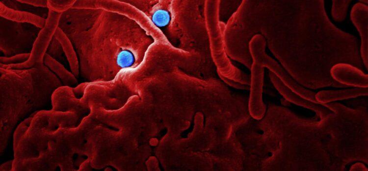 Ebola Book: The Hot Zone Explains an Epidemic