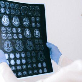 How PTSD Brain Imaging Reveals the Truth of Trauma