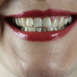 Why Do Humans Have Teeth? Evolution Can Tell Us